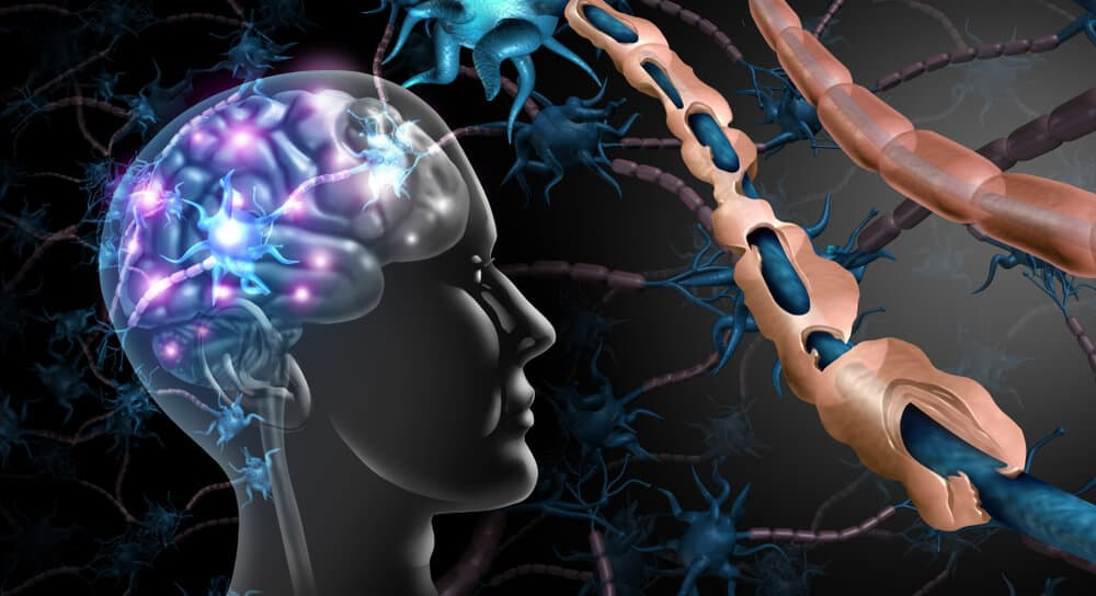 Specialist Motor Neurone or Multiple Sclerosis Care in Bristol